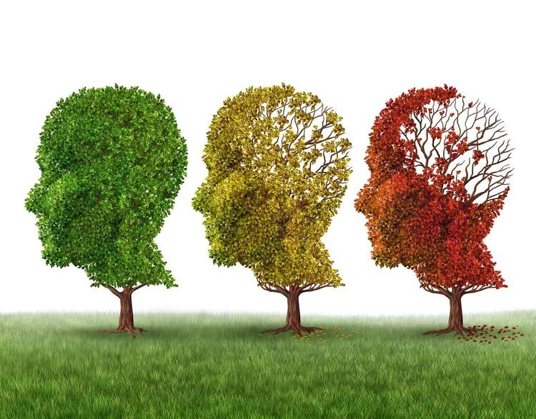 With Alzheimer'sTreatmentStalled,PromisingPipeline Treatments And A ShiftInPerceptionCouldBeKeyToTacklingTheDisease